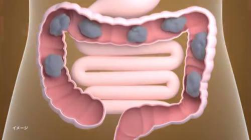 腸の動きは、年を追うごとに